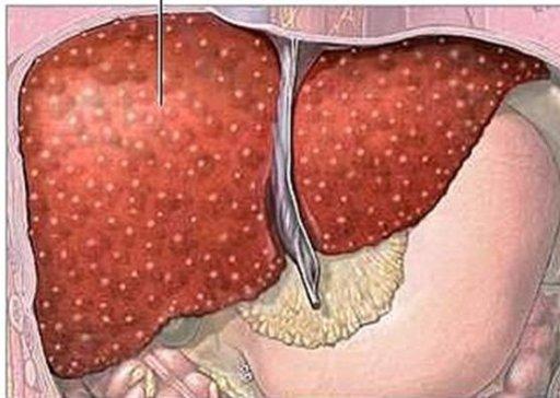 Лечение мозоли со стержнем на ногах народными средствами