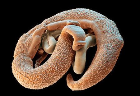 паразиты в печени лечение
