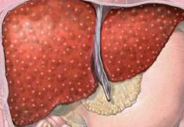 Билиарный цирроз печени