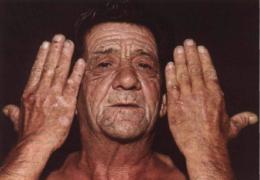Мужчина с порфирией
