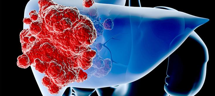 правильное питание рака
